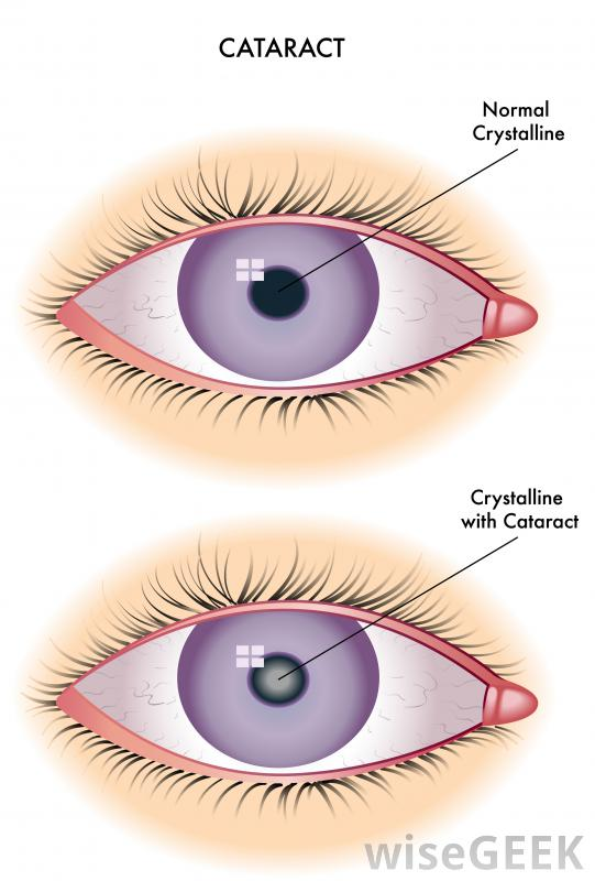 depiction-of-cataracts